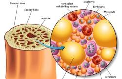 Allogenic Bone Marrow Transplant
