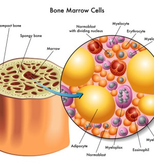 Allogenic Bone Marrow Transplant