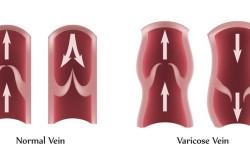 Ambulatory Phlebectomy