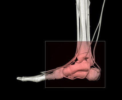 Ankle Arthrocentesis
