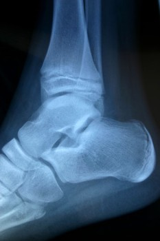 Ankle Synovectomy