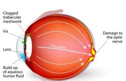 Argon Laser Trabeculoplasty