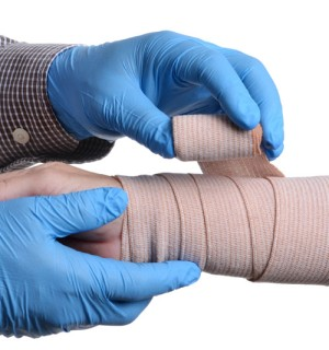 Arm Fasciotomy