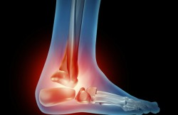 Arthroscopic Ankle Replacement