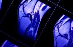 Arthroscopic Anterior Cruciate Ligament Surgery