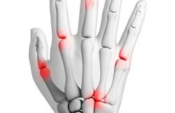 Arthroscopic Finger Fusion