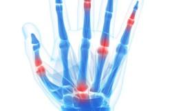 Arthroscopic Finger Synovectomy