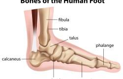 Arthroscopic Foot Fusion