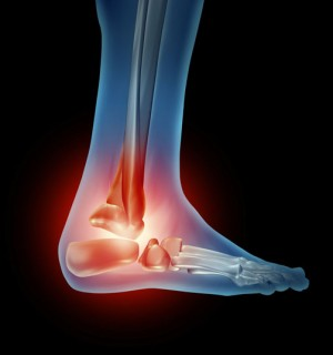 Arthroscopic Foot Joint Replacement