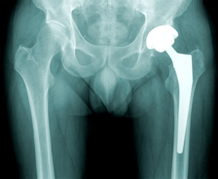 Arthroscopic Hip Replacement