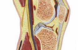 Arthroscopic Knee Synovectomy