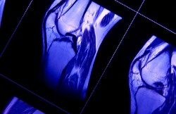 Arthroscopic Lateral Release for Patellar Realignment