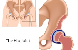 Arthroscopic Partial Hip Replacement