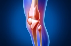 Arthroscopic Partial Knee Replacement