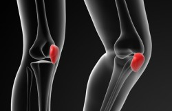 Arthroscopic Proximal Realignment of the Patella