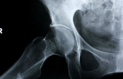Arthroscopic Revision Hip Surgery