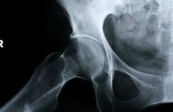 Arthroscopic Revision Hip Surgery