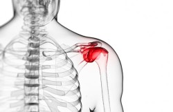 Arthroscopic Shoulder Fusion