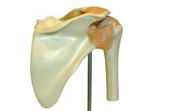 Arthroscopic Shoulder Synovectomy