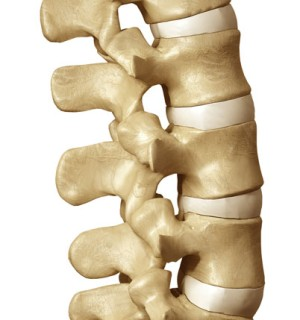 Back and Neck Surgery - Spinal Fusion