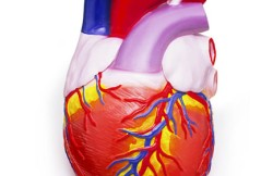 Balloon Angioplasty for Aortic Coarctation