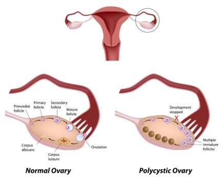 Bilateral Oophorectomy