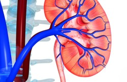 Laparoendoscopic Single-Site Surgery for Kidney Removal