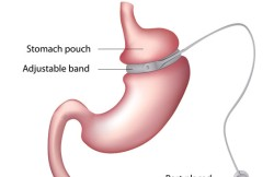 Laparoscopic Adjustable Gastric Banding
