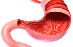 Laparoscopic Cystgastrostomy