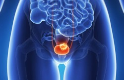 Laparoscopic Cystoprostatectomy