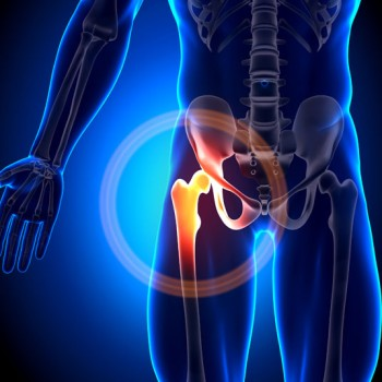 Bone Growth Restriction
