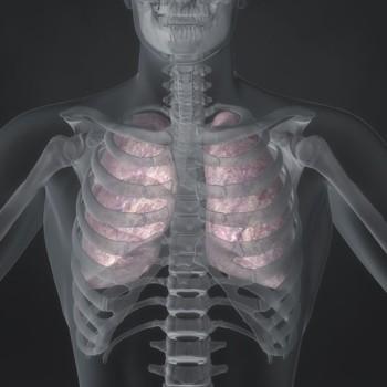 Bronchopulmonary Lavage