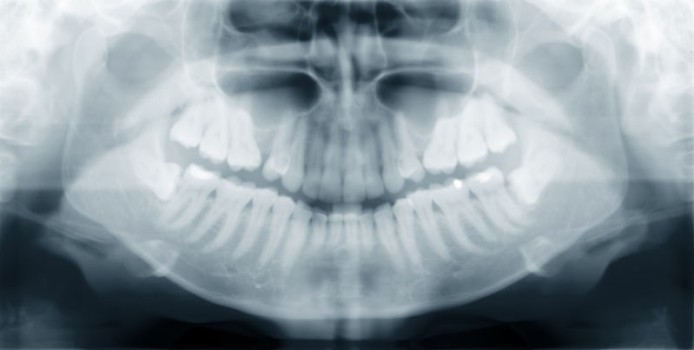 Buccal Exostosis Resection