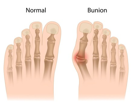 Bunion Correction
