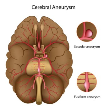Cerebral Aneurysm Repair by Clipping
