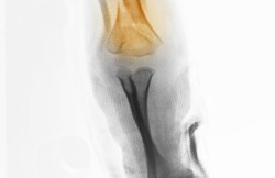 Closed Reduction and Percutaneous Pinning for Supracondylar Humerus Fracture