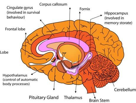 Corpus Callostomy