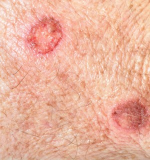 Cryosurgery for Skin Cancer