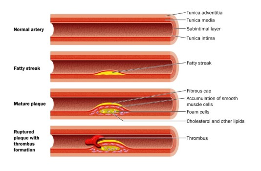 Cutting Balloon Angioplasty