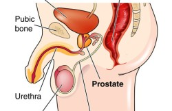 Cystoprostatectomy