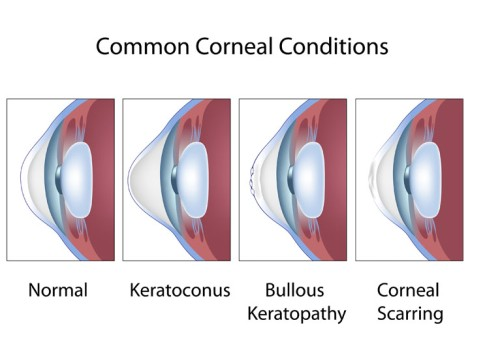 Descemet's Stripping with Endothelial Keratoplasty