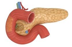 Duodenotomy