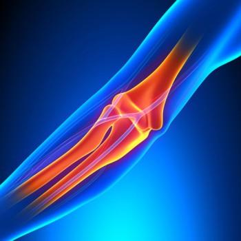 Elbow Arthrocentesis