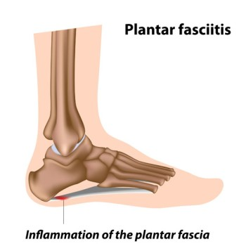 Endoscopic Plantar Fasciotomy