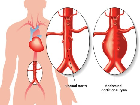 Endovascular Stent Grafting for Aortic Aneurysm