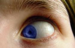 Eye Globe Surgery