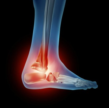 Foot Joint Replacement