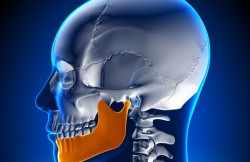 Hydroxyapatite Augmentation of the Mandible