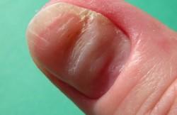 Nail Removal