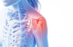 Open Rotator Cuff Repair
